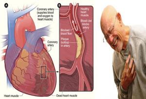 cara mengatasi jantung koroner